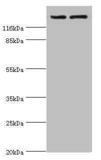 Epigentek/ABCB1 Polyclonal Antibody/A52229-050/50 µg