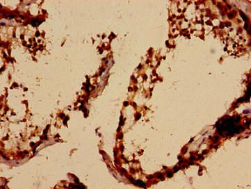 Epigentek/ALKBH3 Polyclonal Antibody/A57365-100/100 µg