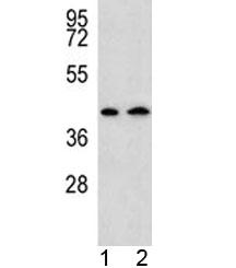 NSJ/AADAT Antibody (F40508)/ F40508-0.4ML/ 0.4 ml