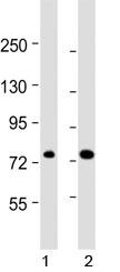 NSJ/ABCD1 Antibody (F40661)/ F40661-0.4ML/ 0.4 ml