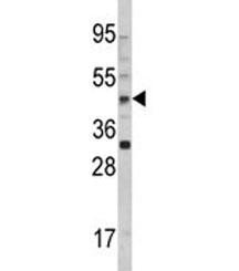 NSJ/AADAC Antibody (F49883)/ F49883-0.4ML/ 0.4 ml