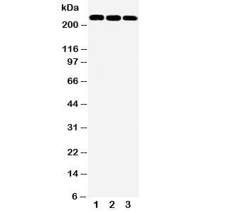 NSJ/ABCA1 Antibody (R30941)/ R30941/ 100 ug