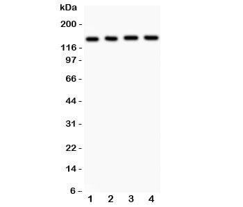 NSJ/ABCB4 Antibody (R31688)/ R31688/ 100 ug