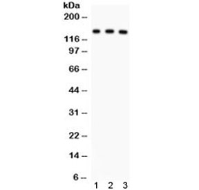 NSJ/ABCB11 Antibody (R31844)/ R31844/ 100 ug