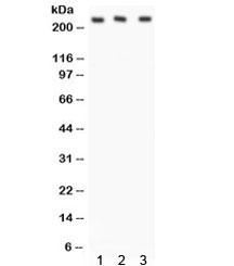 NSJ/ABCA1 Antibody (R31847)/ R31847/ 100 ug