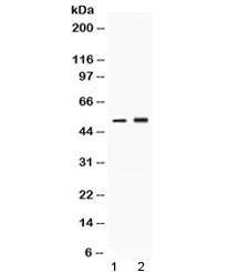 NSJ/AAT Antibody / Alpha 1 Antitrypsin (R32565)/ R32565/ 100 ug