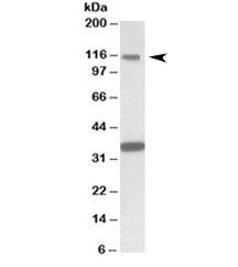 NSJ Bioreagents/KIT Antibody (R34610)/100 ug/R34610-100UG