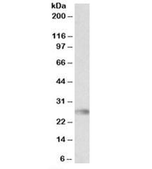 NSJ/HLA-DQA2 Antibody (R35457)/ R35457-100UG/ 100 ug