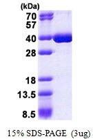 Usbio/HNRNPK, Recombinant, Human, aa1-276, His-Tag (Heterogeneous Nuclear Ribonucleoprotein K Isoform A, CSBP, HNRPK, TUNP)/100ug/137082