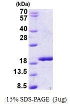 Usbio/RBM3, Recombinant, Human, aa1-157, His-Tag (Putative RNA-binding Protein 3, IS1-RNPL, RNPL)/100ug/137180