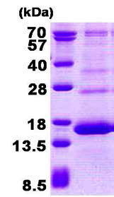 Usbio/138663  Anti-HBG2, Recombinant, Human, aa1-147, His-Tag (Hemoglobin Subunit Gamma-2, TNCY)/100ug/138663