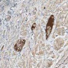 Abbiotec/Activated Protein C Antibody/250212/0.2 mg