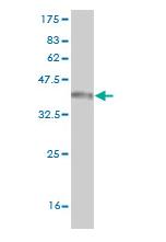 Biosensis/Mouse monoclonal antibody to human CD97 antigen [5D5]: IgG/M-811-100/100 µg