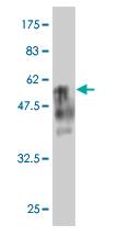 Biosensis/Mouse monoclonal antibody to human BTG4 protein [1A6]: IgG/M-806-100/100 µg