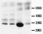 Biosensis/Mouse monoclonal antibody to Calbindin-D [CB-D7]: IgG/M-976-100/100 µg
