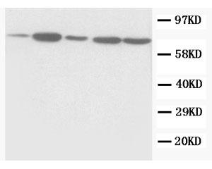 Biosensis/Rabbit polyclonal antibody to Succinate dehydrogenase [ubiquinone] flavoprotein subunit (641-656): Affinity purifie