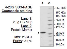 Bpsbioscience/HSP90β (C-terminal), Biotin-labeled, His-tag, Avi-tag/50313/100 µg
