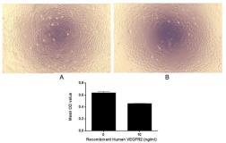 GeneTex/Human VEGF Receptor 2 protein (active)/GTX00258-pro
