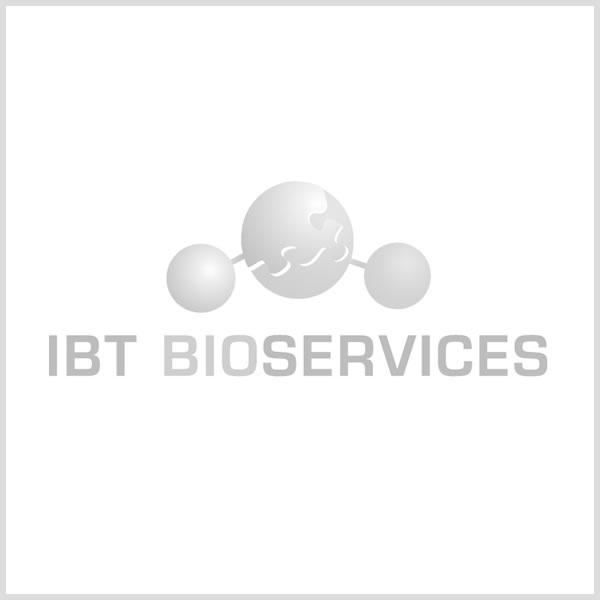 IBT Bioservices/Recombinant SUDV GPddmuc (Sf9)/0512-015