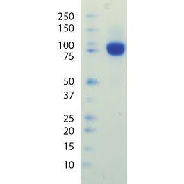 U-Protein Express/PDGF-R beta-(his)C, ECD, human, recombinant, 100 microgram/P002